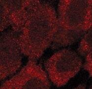 Acetyl-CoA Carboxylase Antibody (PA5-17564)
