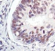 MRE11 Antibody (PA5-17573)