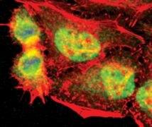 TLK1 Antibody (PA5-17576)