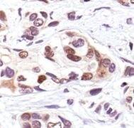 Phospho-p53 (Ser33) Antibody (PA5-17596)