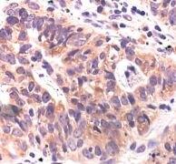 APS Antibody (PA5-17608)