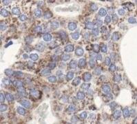 GNAQ Antibody (PA5-17693)