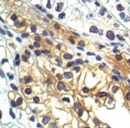 Phospho-GYS1 (Ser641) Antibody (PA5-17702)