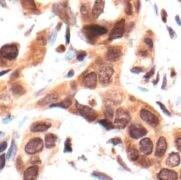 p38 MAPK alpha Antibody (PA5-17713)