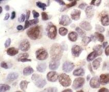Phospho-NPM1 (Thr199) Antibody (PA5-17736)
