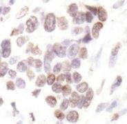 Acetyl-Histone H2B (Lys20) Antibody (PA5-17821)