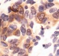 Phospho-PKC delta/theta (Ser643, Ser676) Antibody (PA5-17905)