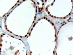 PAX8 Antibody (PA5-18069)