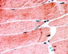 MURF1 Antibody (PA5-18139)
