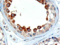 ALMS1 Antibody (PA5-18141)