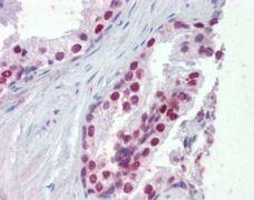 FOXA1 Antibody (PA5-18168)