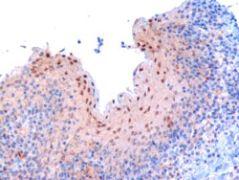 RANBP9 Antibody (PA5-18177)
