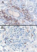 SH3BP1 Antibody (PA5-18249)
