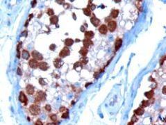 TCP1 Antibody (PA5-18251)