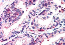 MSX1 Antibody (PA5-18284)