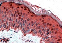 AP2 gamma Antibody (PA5-18346)