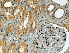 TRIM5 alpha Antibody (PA5-18466)