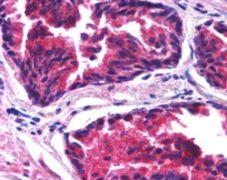 SNX26 Antibody (PA5-18564)