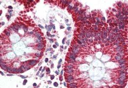 TSPO Antibody (PA5-18565)