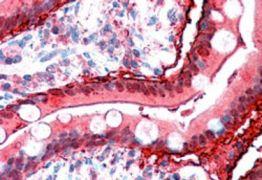 FABP2 Antibody (PA5-18700)