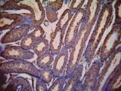 LDHC Antibody (PA5-18780)