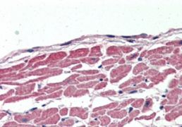 KCC3 Antibody (PA5-18816)