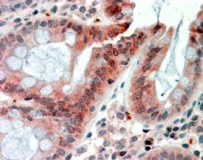 RELM beta Antibody (PA5-18956)