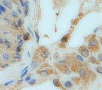 GC Antibody (PA5-19802)