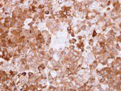 NQO1 Antibody (PA5-21290)