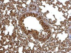 EML1 Antibody (PA5-21294)