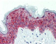 GALR2 Antibody (PA5-21303)