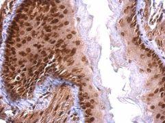 SAFB Antibody (PA5-21356)
