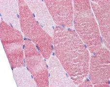 DAP5 Antibody (PA5-21377)