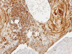 Creatine Kinase BB Antibody (PA5-21382)