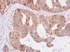 DNPEP Antibody (PA5-21406)