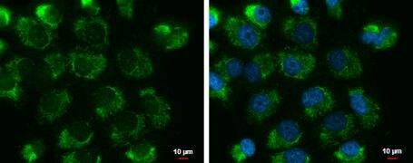 UQCRFS1 Antibody (PA5-21420)