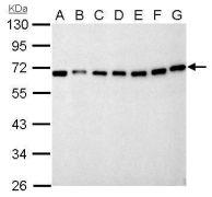NUP62 Antibody (PA5-21435)