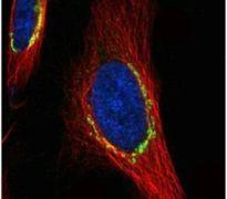COPD Antibody (PA5-21484)
