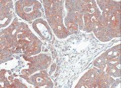 MPI Antibody (PA5-21510)