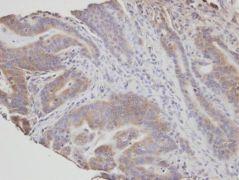 FAN Antibody (PA5-21512)