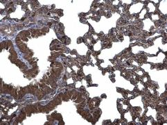 CLIC3 Antibody (PA5-21568)