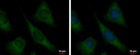 TPI1 Antibody (PA5-21583)
