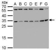 RPS3A Antibody (PA5-21632)