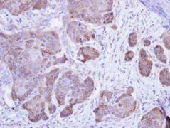 Calsequestrin 2 Antibody (PA5-21706)