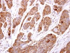 TBCC Antibody (PA5-21710)