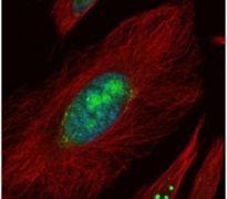 UTP6 Antibody (PA5-21716)