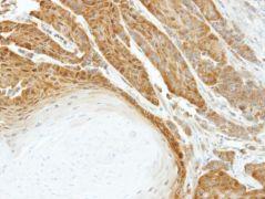 HSPA6 Antibody (PA5-21726)