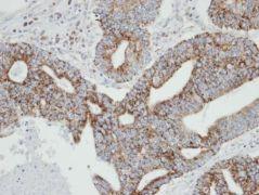 RAB2A Antibody (PA5-21754)