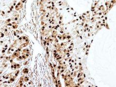 SET Antibody (PA5-21756)