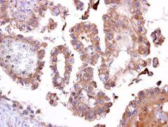 TATDN1 Antibody (PA5-21797)